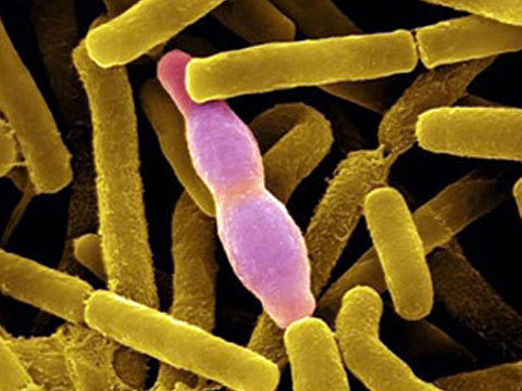 symtomps and causes of bacillus anthracis essay