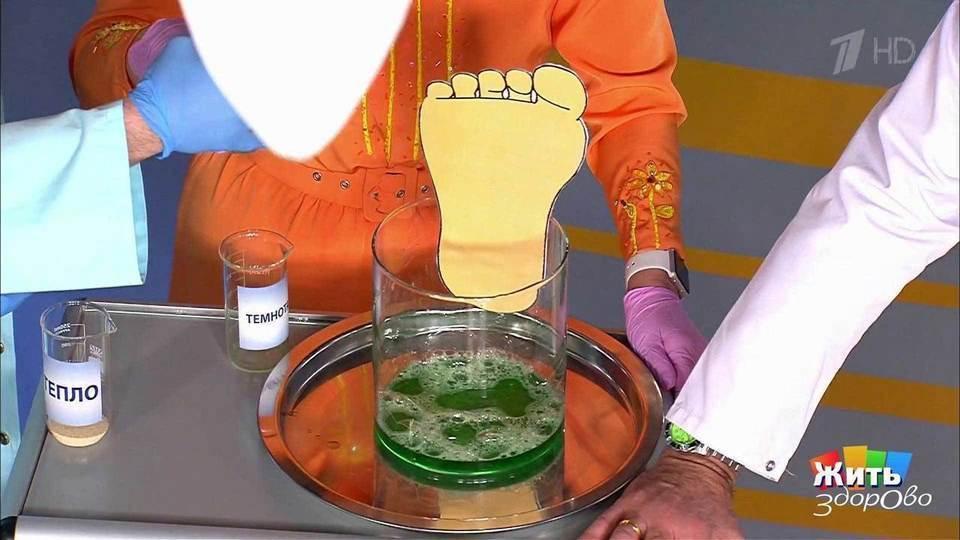 Лечение грибка ногтей малышева видео
