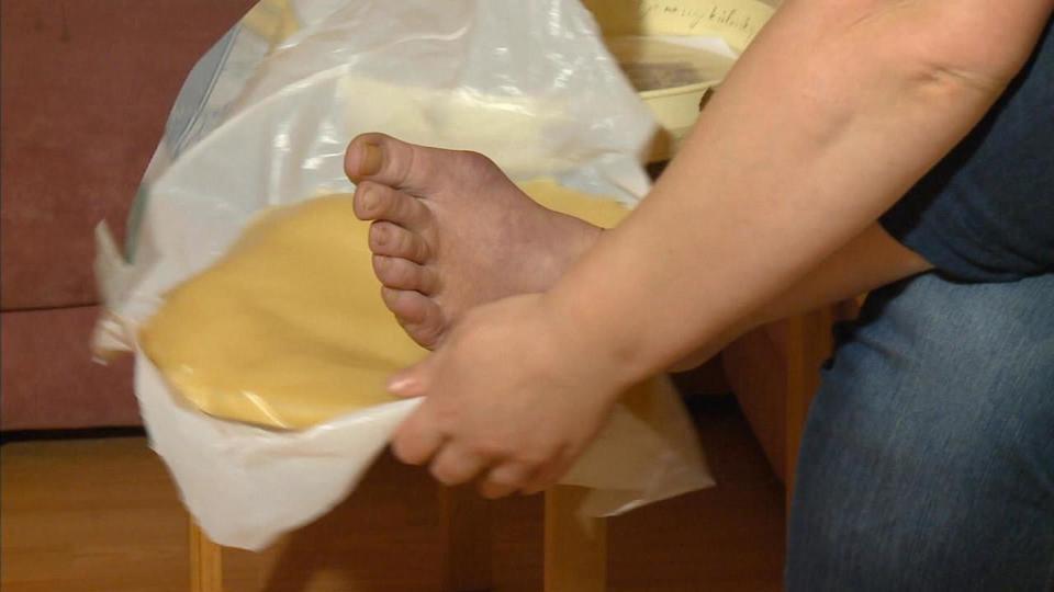 Утром болят суставы шина детская ортопедическая для тазобедренного сустава цена