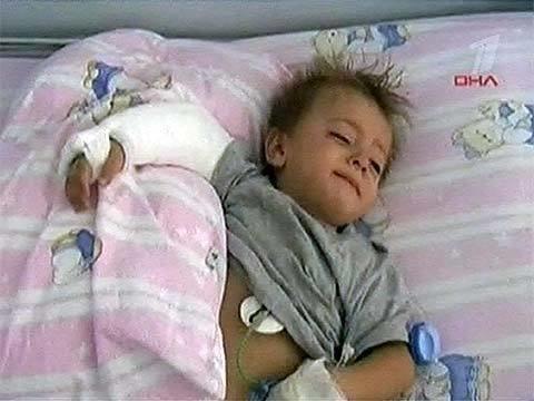 Втурции трехлетний мальчик упал сбалкона ичудом остался ж.