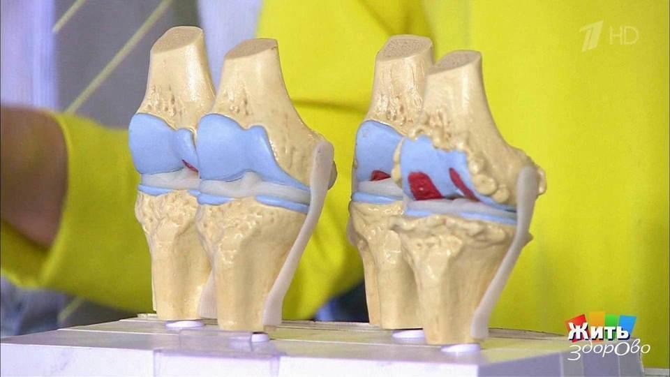 Жить здорово артрит коленного сустава лечение суставов у коров